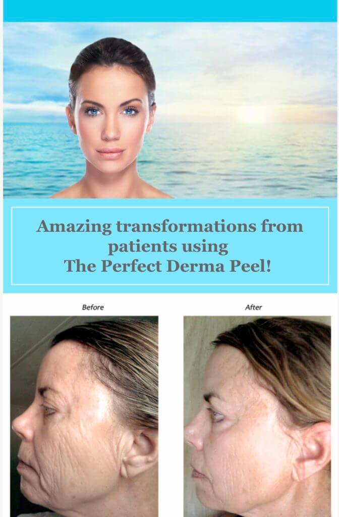 the-perfect-dermal-peel-before-after