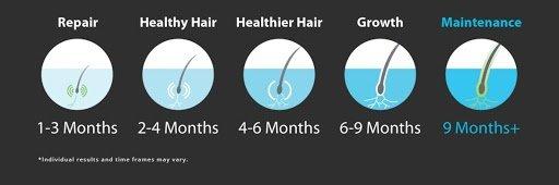 Theradome-hair-loss-regrowth-chart2-sarasota-hair-clinic