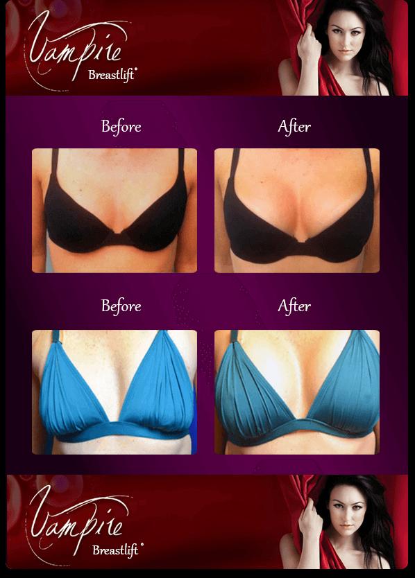 vampire-breast-lift-before-after-sarasota-medical-spa