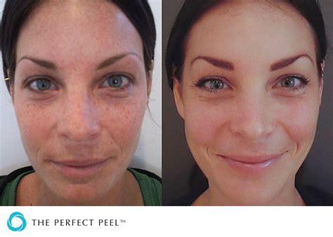 perfect-derma-peel-before-after-medical-spa-sarasota