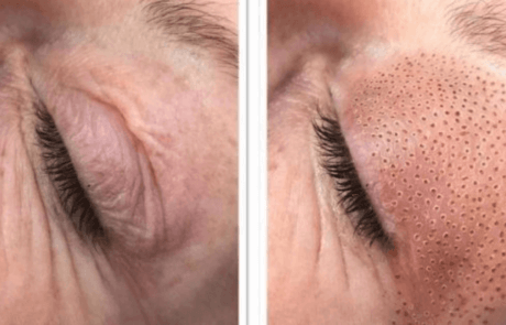 skin-tightening-eyelids-fibroblasting