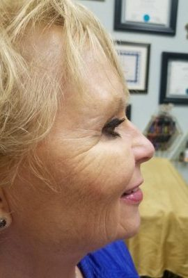 after-botox-crows-feet-rejuvenate-528-medical-spa-sarasota