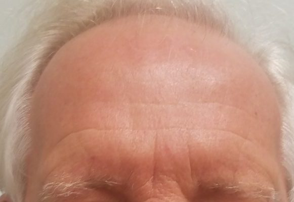 botox-forehead-lines-after-at-rejuvenate-528-medical-spa-sarasota