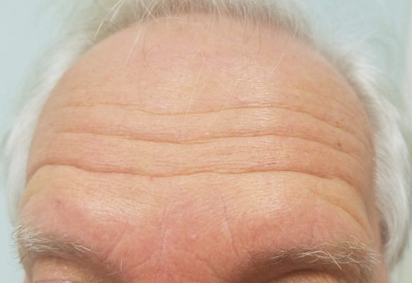 botox-forehead-lines-before-at-rejuvenate-528-medical-spa