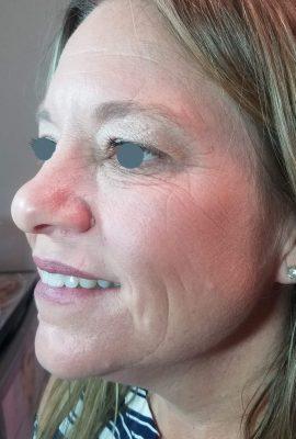 botox-and-fillers-profile-wrinkle-reduction-sarasota-medical-spa