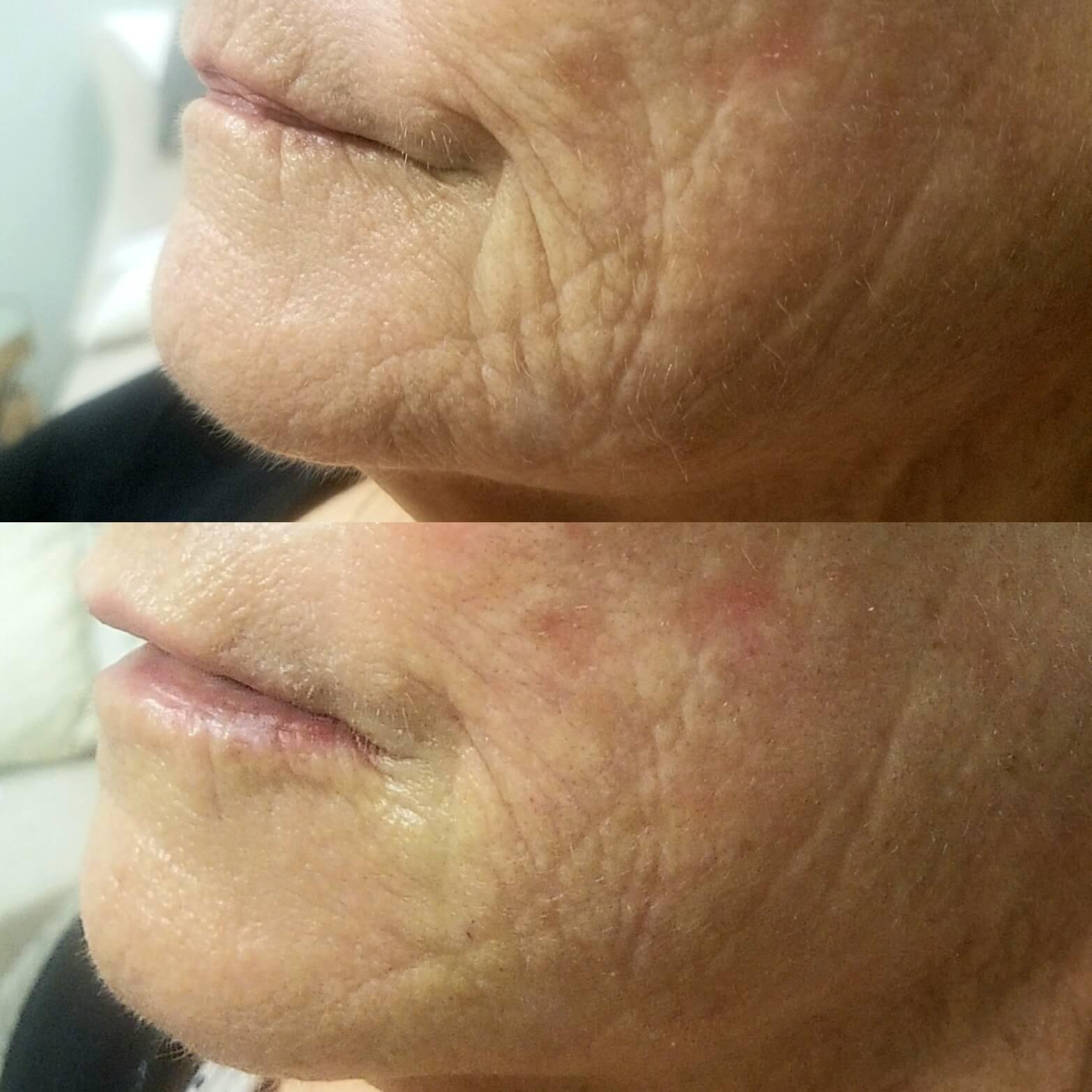 lip-enhancement-2-lip-augmentation-sarastoa-fl