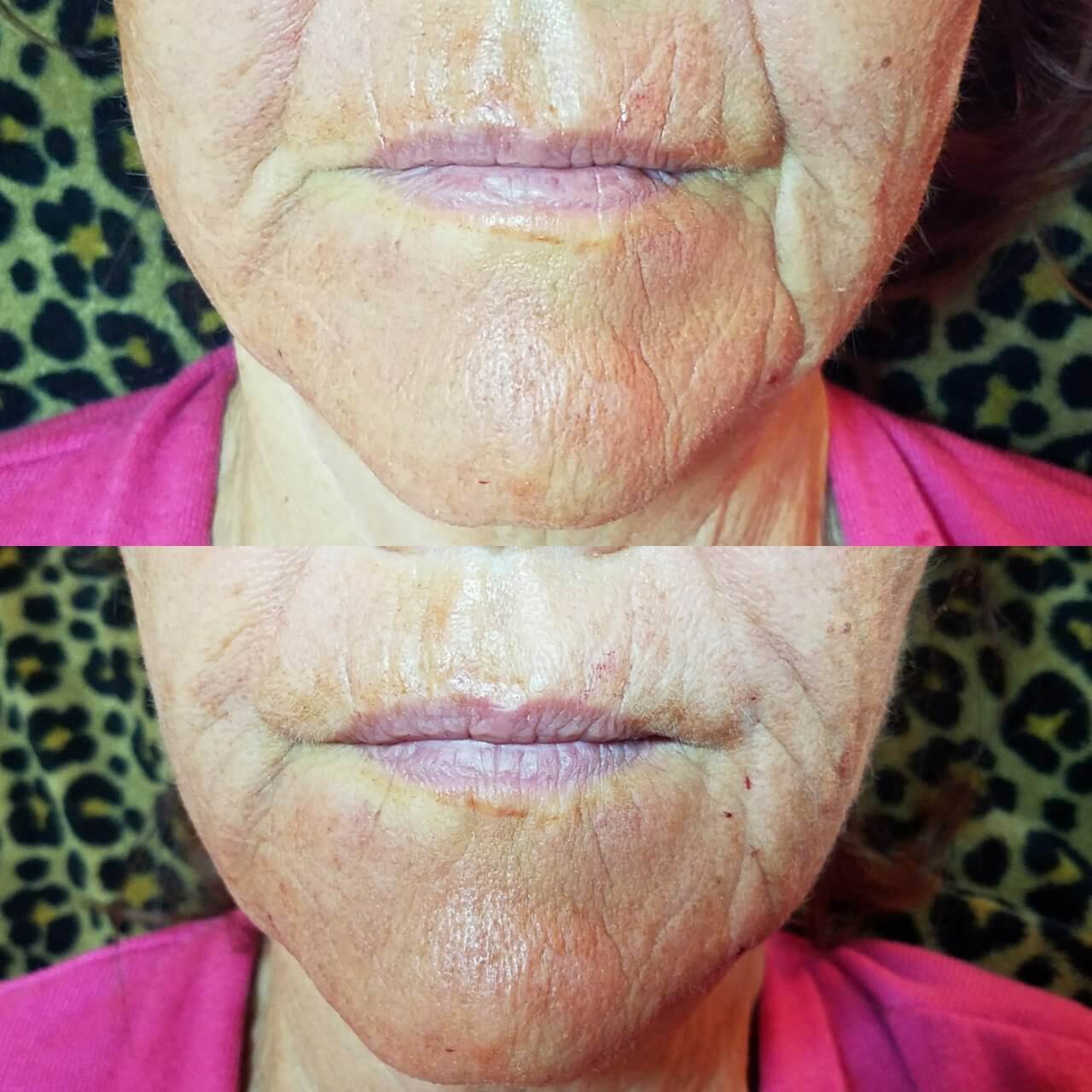 lip-enhancement-5-lip-fillers-sarasota-fl