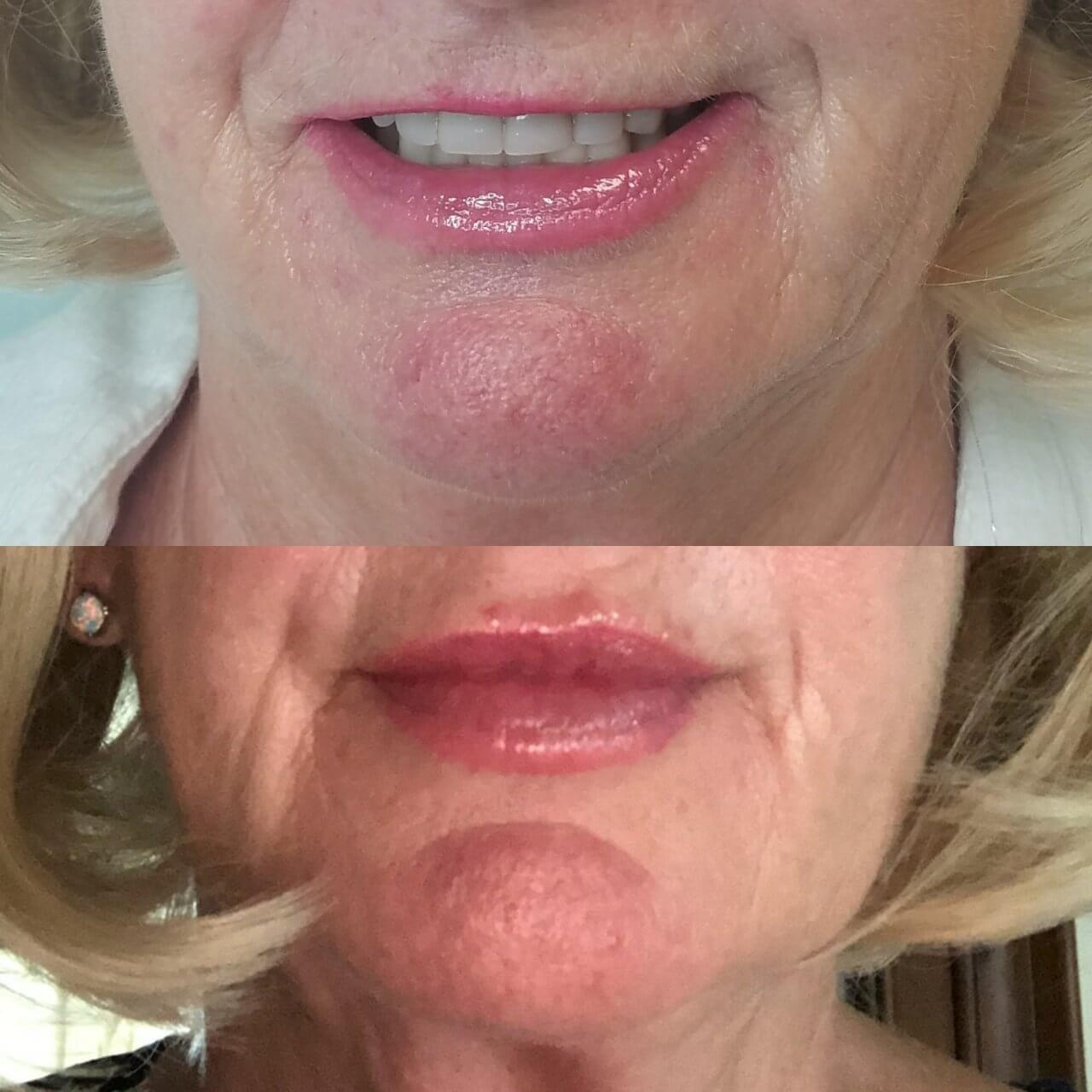 lip-enhancement-7-lip-fillers-sarasota-fl
