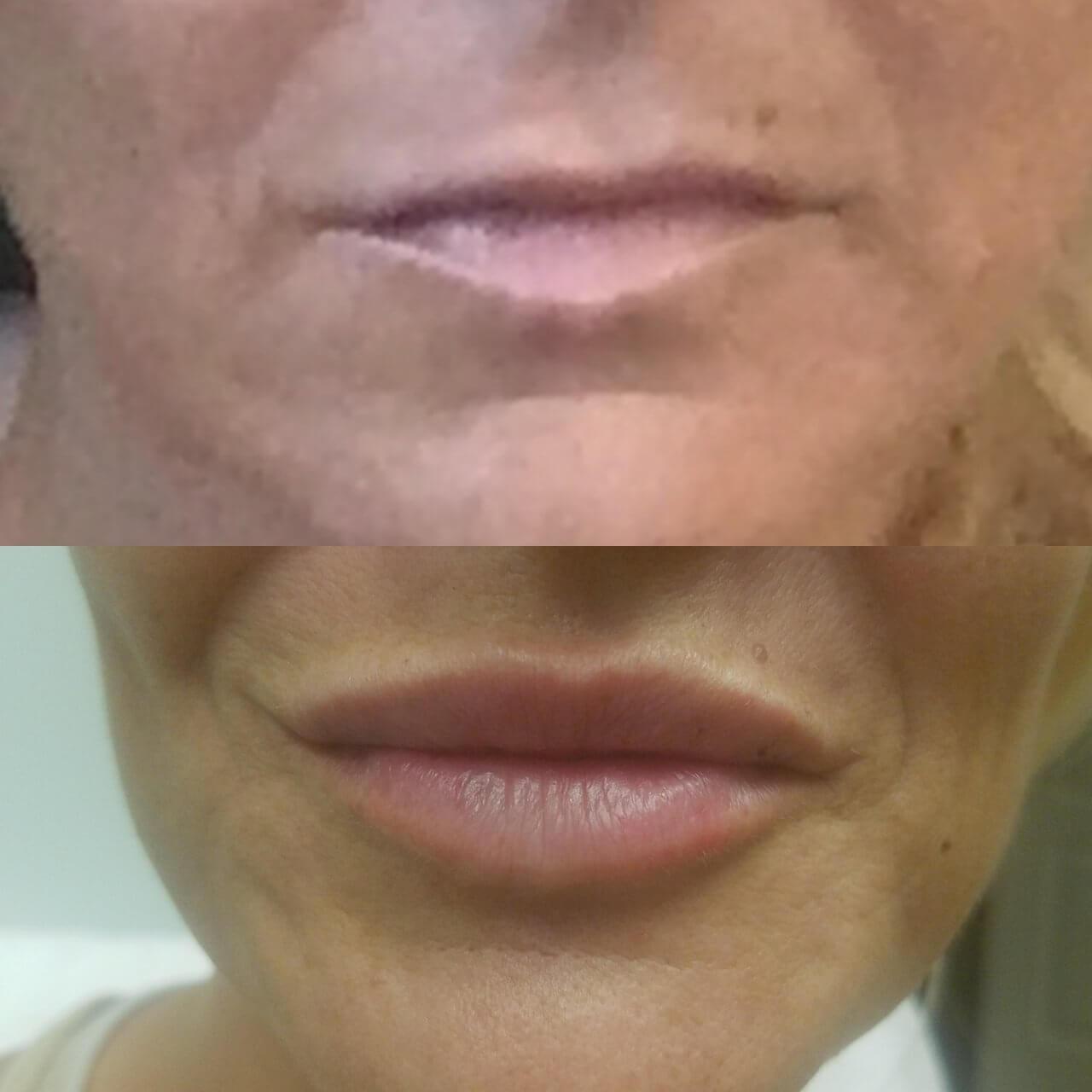 lip-enhancement-4-lip-fillers-sarasota-fl
