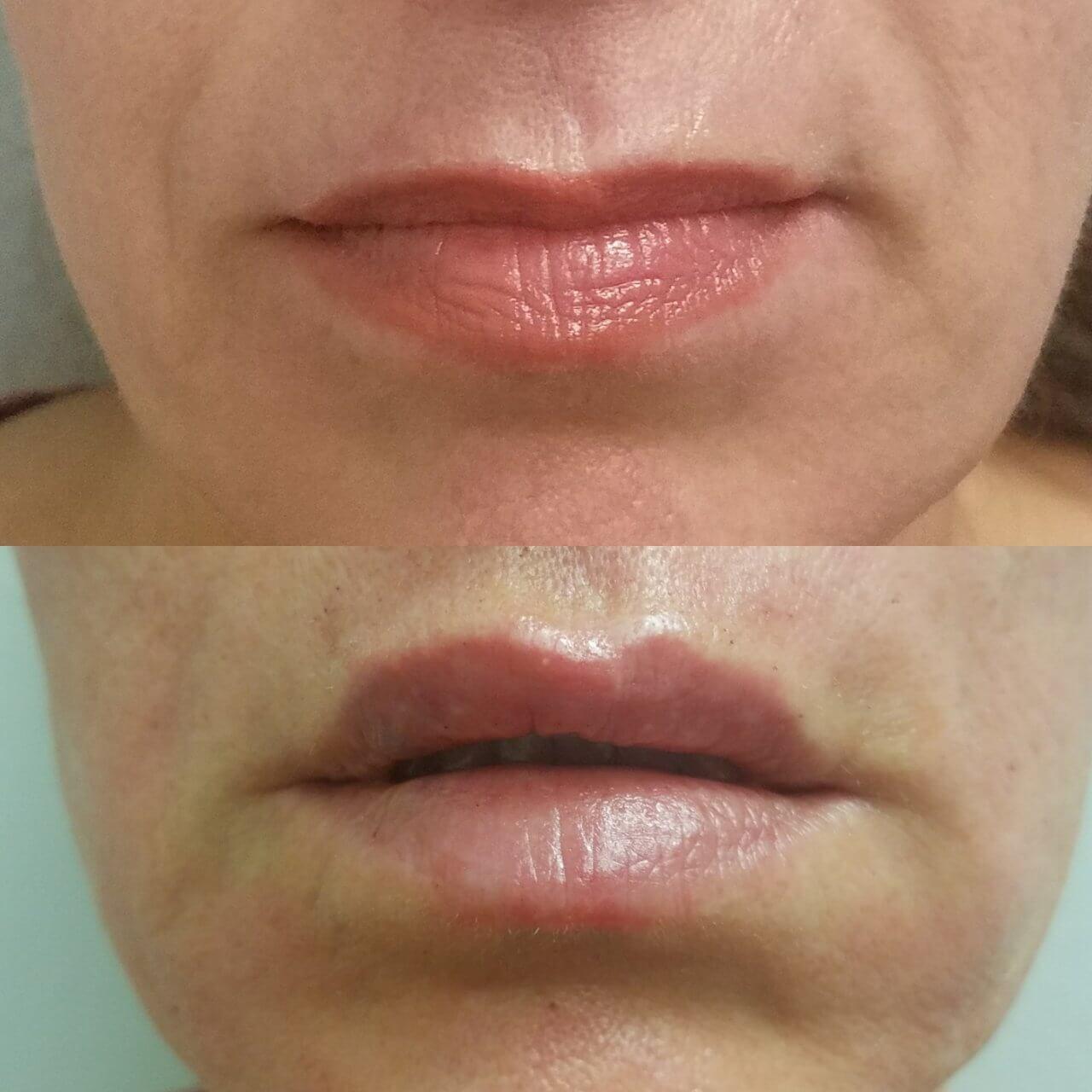 lip-enhancement-8-lip-fillers-sarasota-fl