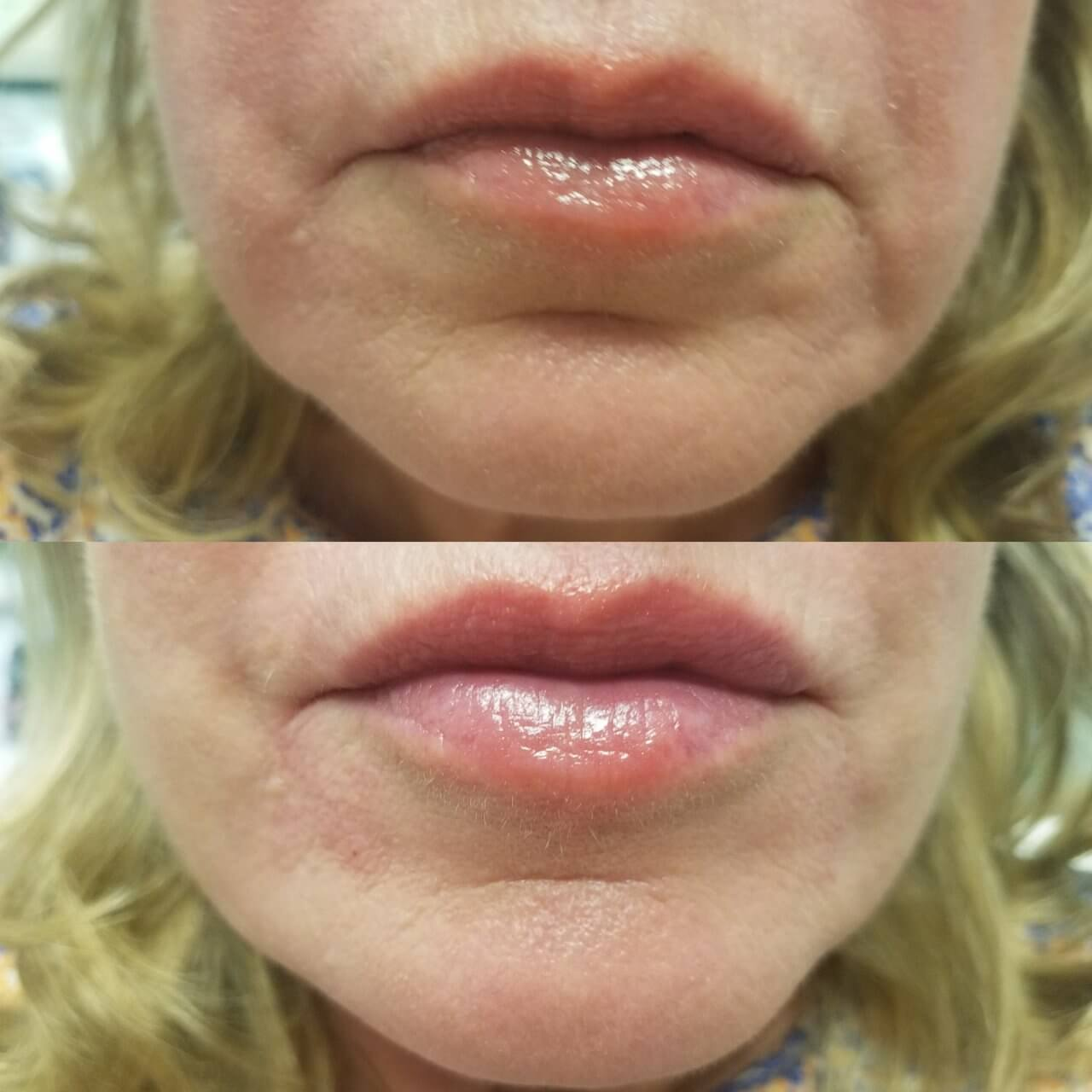 lip-enhancement-3-lip-fillers-sarasota-fl