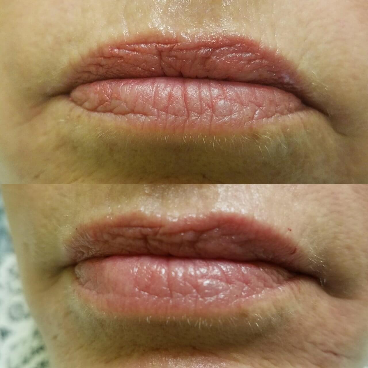 lip-enhancement-1-lip-fillers-sarasota-fl