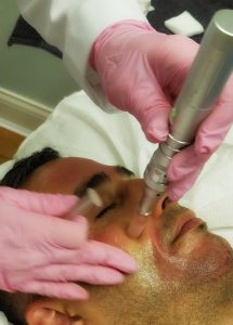 microneedling-sarasota-medical-spa