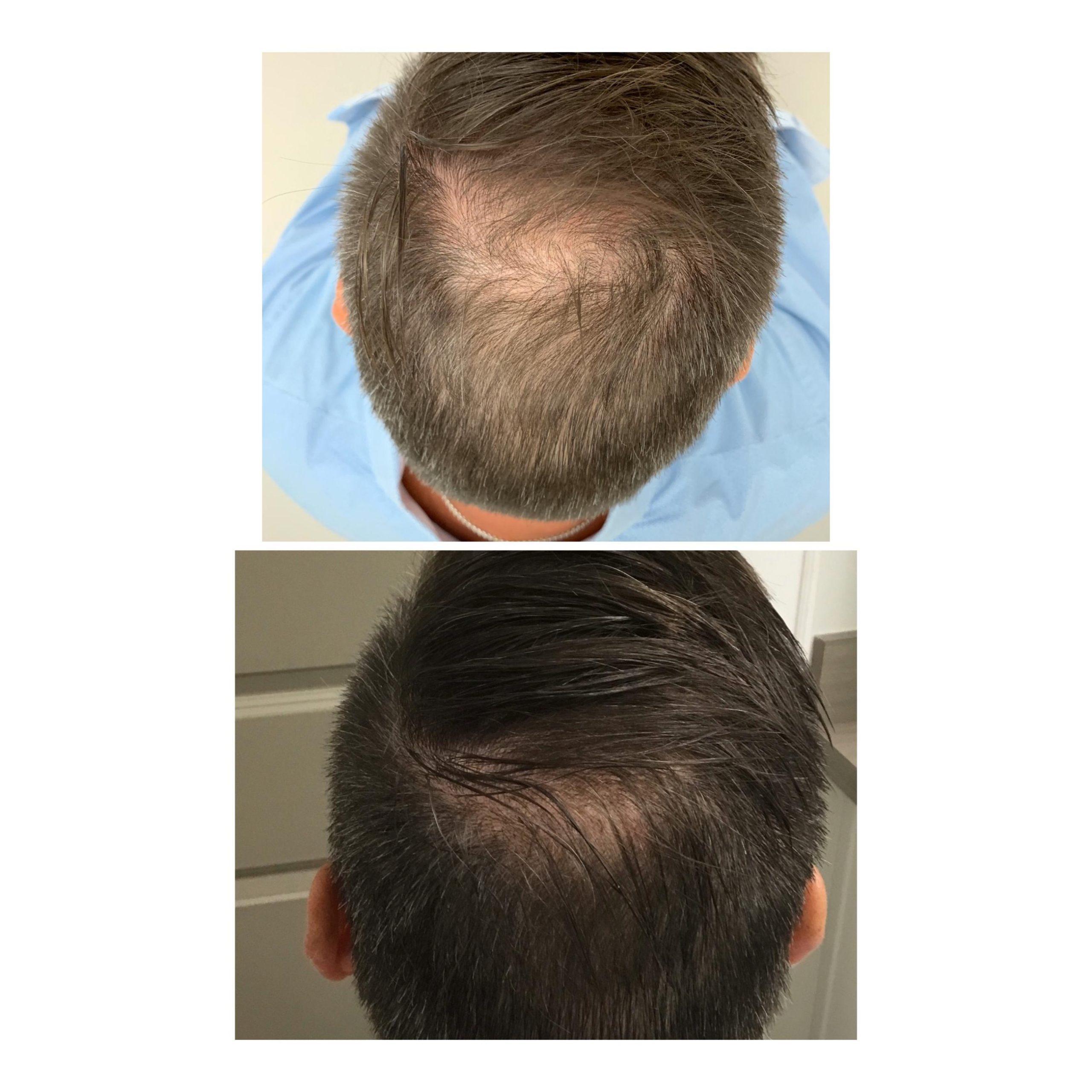 exosomes-hair-regeneration-30-days-after-not-prp-hair-restoration