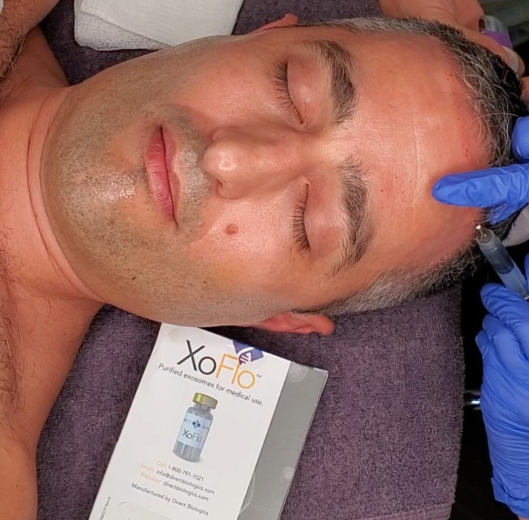 exosomes-for-hair-line-rejuvenation-sarasota-med-spa
