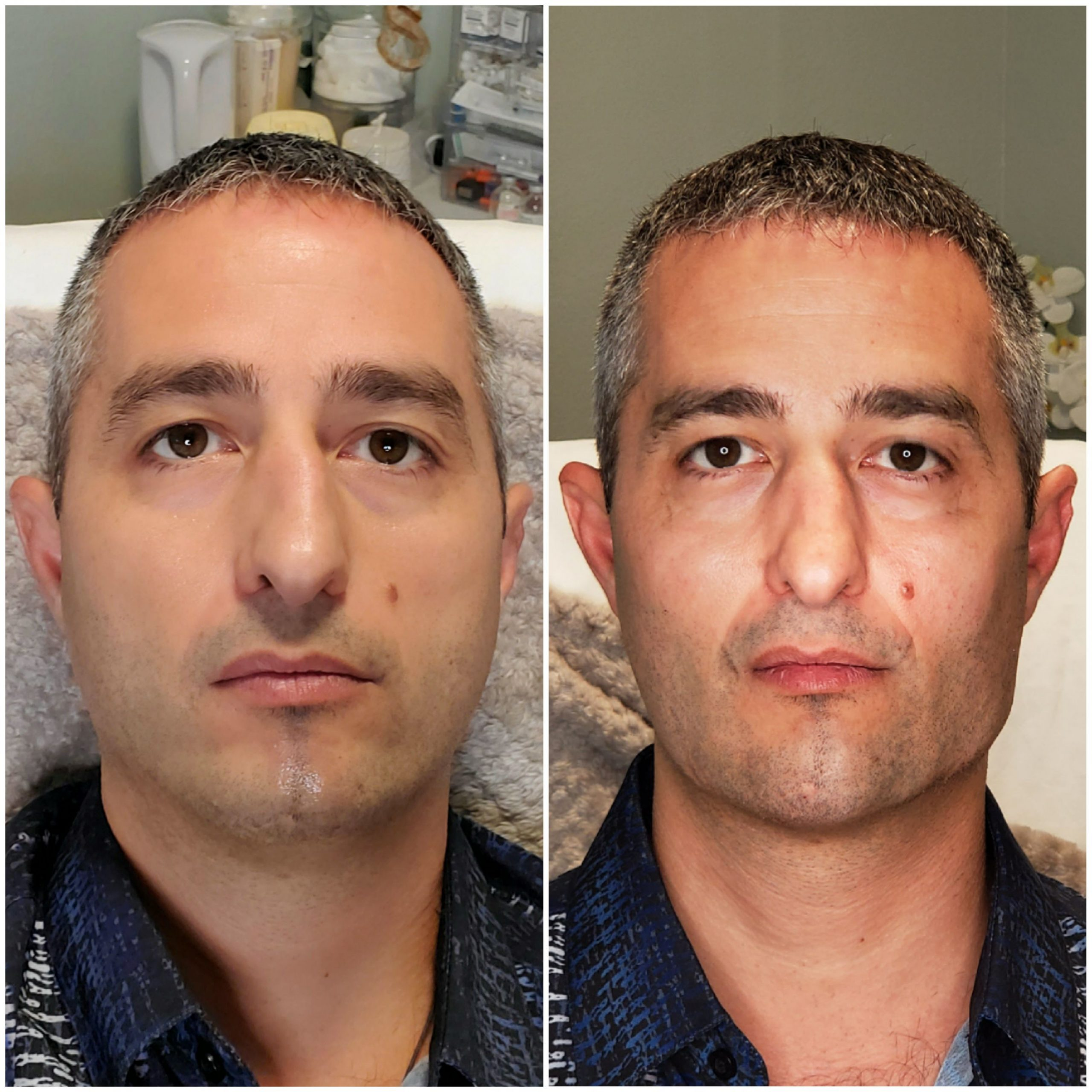 radiesse dermal filler before and after photos man cheeks and jawline