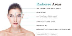 radiesse-filler-injections-areas-sarasota-medical-spa